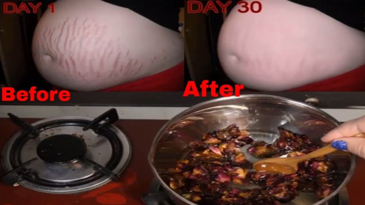 """Say Goodbye to """"Pregnancy Stretch Marks"""" Since Today, With This Magical Oil"""