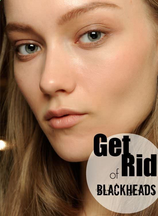 How to Get Rid of Blackheads Fast at Home. Blackheads Home Remedies