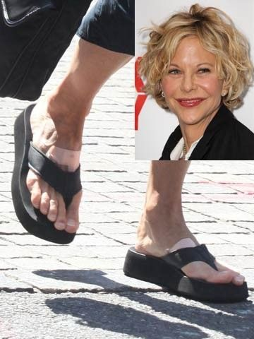 #MegRyan is doing a good thing by covering her #blister spots, but that #tailorsbunion on her right foot looks painful.