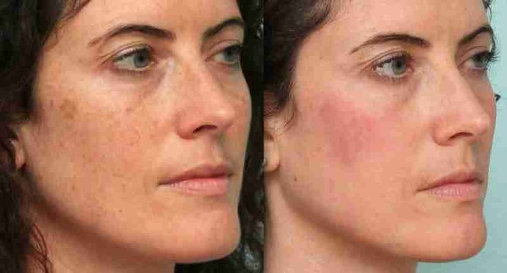 No matter how hard you take care of your face, dark spots can still appear due to sun exposure, acne, or pregnancy. You can hide these spots with heavy makeup or you can purchase chemical peels. You can also go through laser treatments to remove the marks. If you're looking for a way to save…