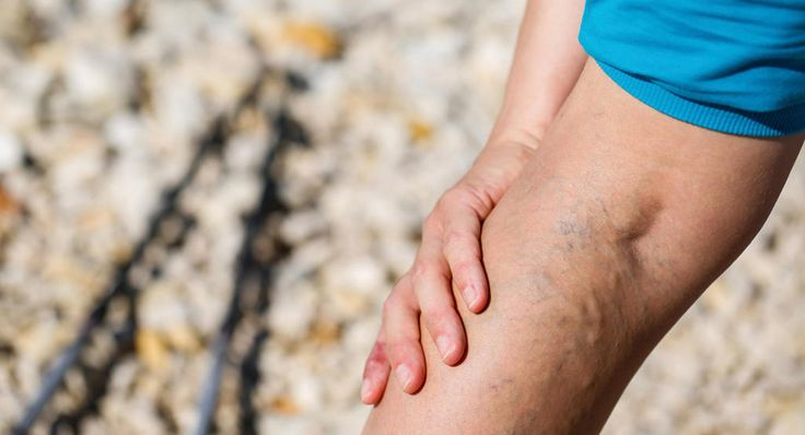 Learn why pregnancy makes you more susceptible to varicose veins and spider veins and what you can do about them.