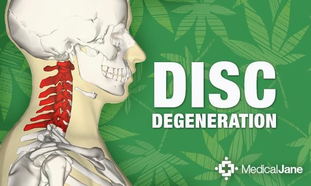 Study: Cannabidiol (CBD) May Prevent Degenerative Disc Disease. What is Intervertebral Disc Degeneration/Degenerative Disc Disease?  Intervertebral discs sit between each vertebra (bone segments of the spine) and are comprised of fibrous cartilage. They act to stabilize and mobilize the spine, and also to absorb shock that results from movement, in order to prevent damage to the body. When intervertebral discs are damaged and degenerate (most commonly in the regions of the neck and lower…