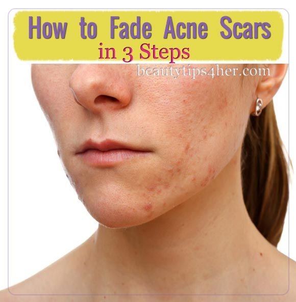 How to Lighten Acne Scars or Dark Marks Naturally Using these 3 Steps | Beauty and MakeUp Tips