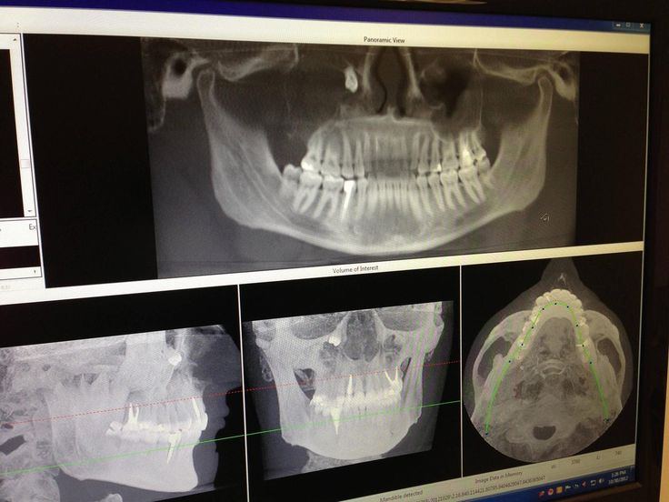 Holy. Cyst in maxillary sinus pushed wisdom tooth toward the eye