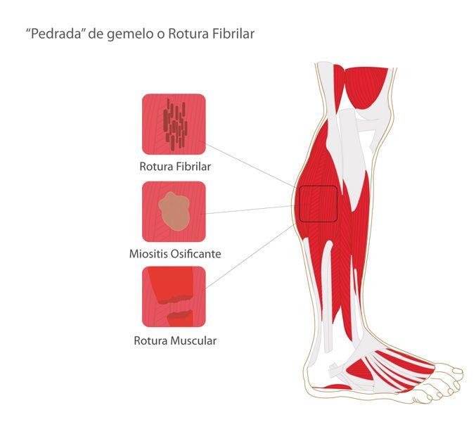 Rotura fibrilar en el gemelo Una rotura fibrilar es una lesión no muy grave en la que se afectan las fibras que forman el vientre muscular. La gravedad de la lesión dependerá del numero de fibras afectadas, pudiendo llegar a la rotura total del músculo. Este tipo de lesión se …