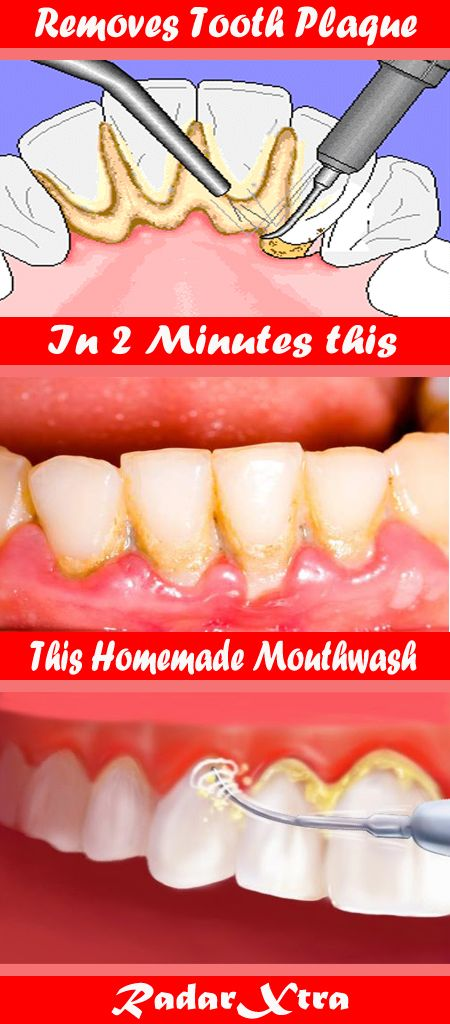 One of many very important components of the process for oral hygiene consists of utilizing mouthwash.    It reduces the presence of plaque, whereas reaching and combating micro organism that escaped dental cleansing on the identical time.    It's