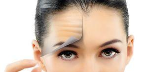 Le rughe che solcano la fronte si presentano generalmente sotto forma di lunghe linee orizzontali o di piccole righe verticali che arrivano all'altezza del naso