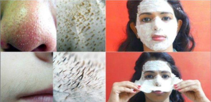 Egg Whites Get Rid of Facial Hair and Blackheads | TipHero