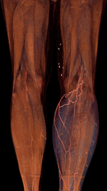 Runoff angiography by voxel123, via Flickr