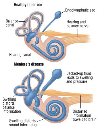 menieire's disease- An inner ear disorder that causes episodes of vertigo (spinning)