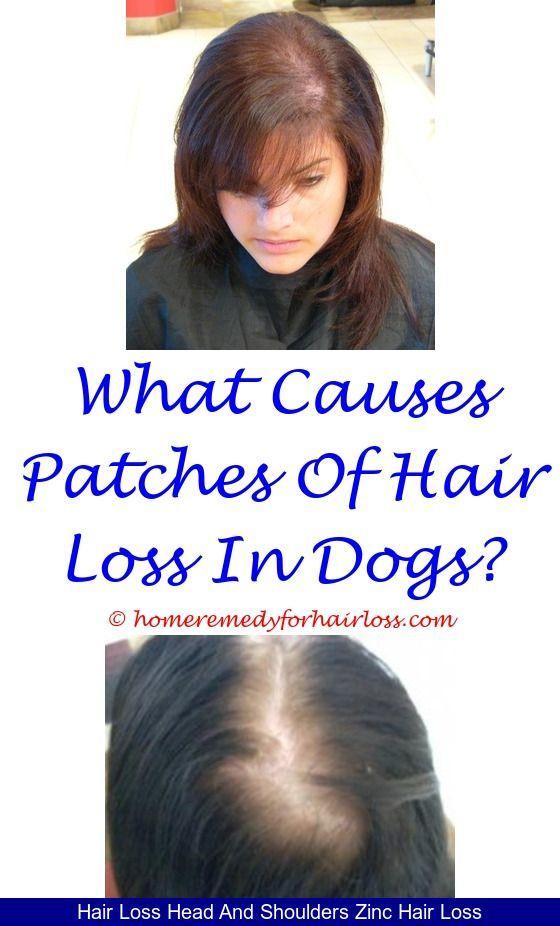 zinc for hair loss reviews