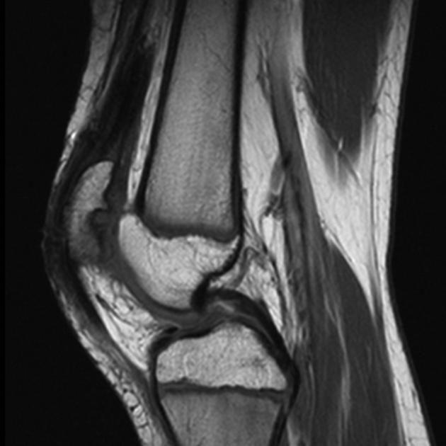 Chondromalacia patellae | Radiology Reference Article | Radiopaedia.org