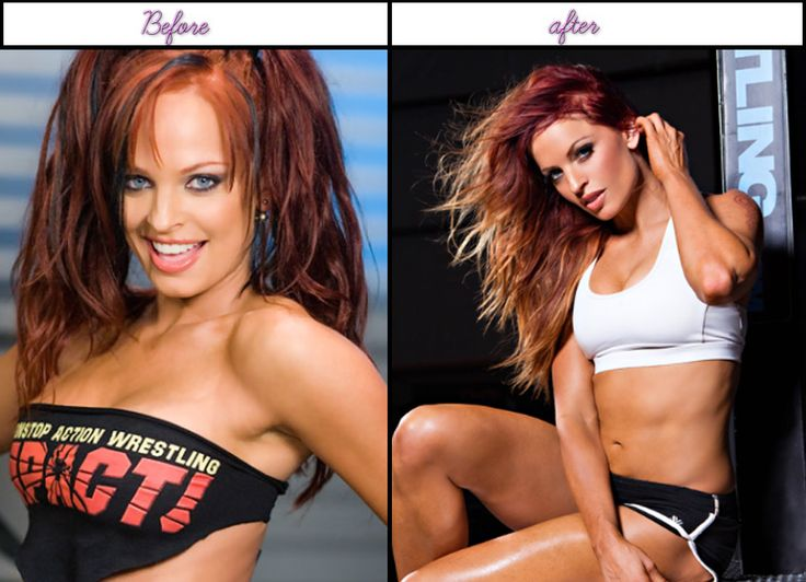 Right After Surgical Procedure Images Of Actual Daily Life Of Christy Hemme And Just Before Plastic Medical Procedures - http://www.afterbeforeplasticsurgery.com/right-after-surgical-procedure-images-of-actual-daily-life-of-christy-hemme-and-just-before-plastic-medical-procedures/