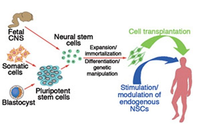 Trapianto neuronale per sconfiggere il morbo di Parkinson - SALUTE E BENESSERE ALL'EDEN