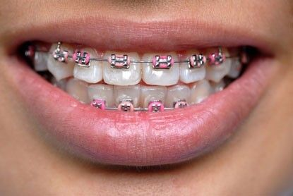 how do it work and correct the teeth