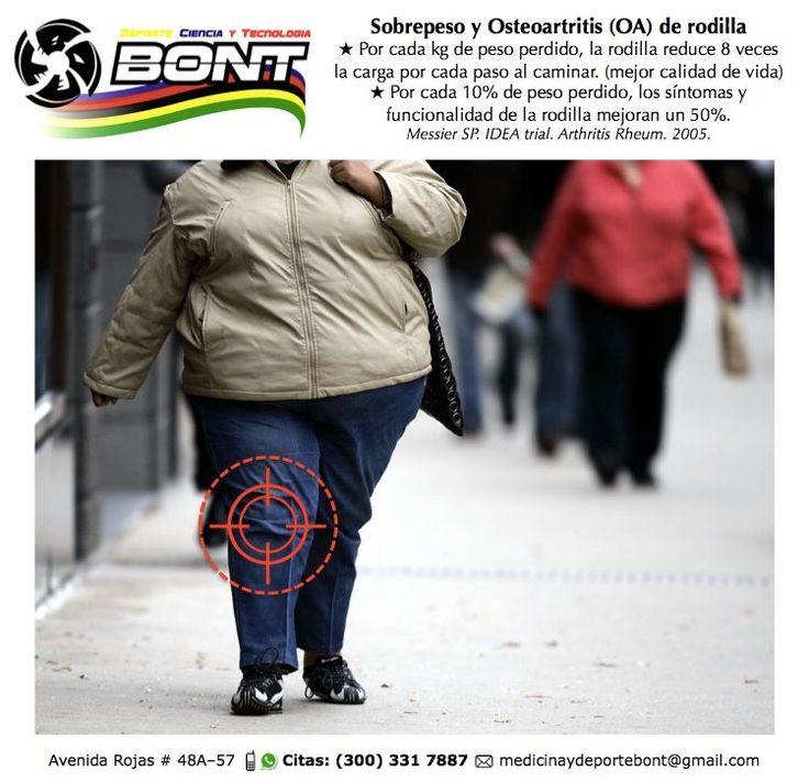 #Osteoartritis | #Sobrepeso | #Beneficios | #ActividadFísica Cada kilogramo de peso que reduzcas > menos síntomas y mejor calidad de vida en los pacientes con osteoartrosis de rodilla. Contáctanos: 📞 (300) 331 7887