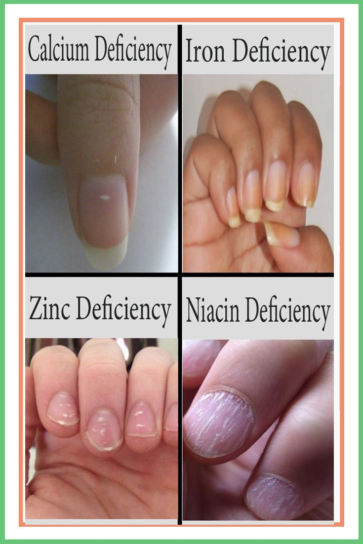 Signs Your Nails Is Trying To Tell You About Your Health Nutrition Treatment Calciumdeficiency Calluses Nail Health Signs Fingernail Health Cracked Nails