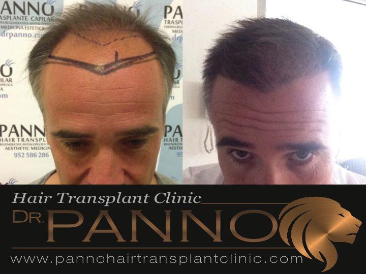 Tecnica FUE de trasplante capilar cordoba DR Panno en cordoba docente de la universidad de cordoba
