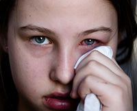 The seven types of conjunctivitis (pink eye). - Sinus and Ear infection can be the cause