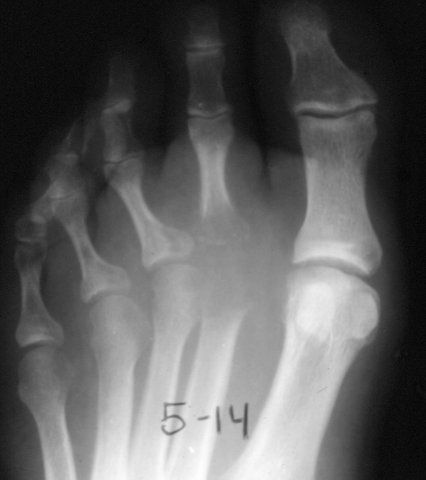104 best images about OSTEOMYELITIS on Pinterest | X rays ...