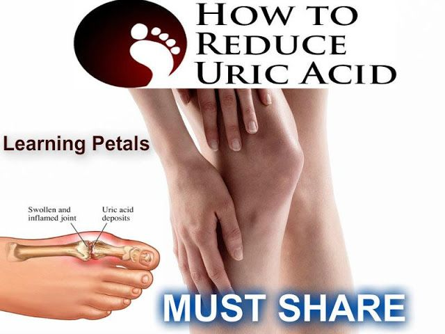 food restriction for high uric acid patients gout in ankle relief treat severe gout