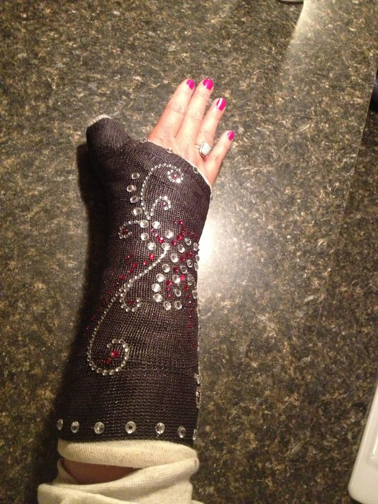 If your stuck with a cast... Bling it!