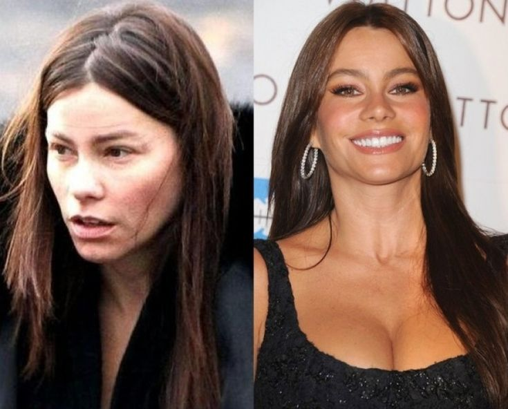 Sofia Vergara Before And After sofia vergara before and after plastic surgery