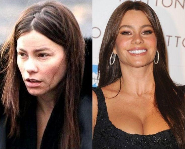 Sofia Vergara Before And After sofia vergara before and after plastic surgery