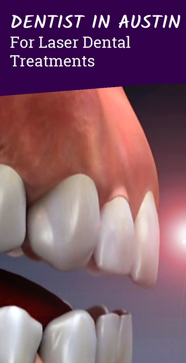 Dentist In Austin For Laser Dental Treatments With Images Diy Herbal Remedies Herbal Remedies Natural Cold Remedies