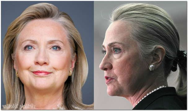 Did Hillary Clinton Have Plastic Surgery?