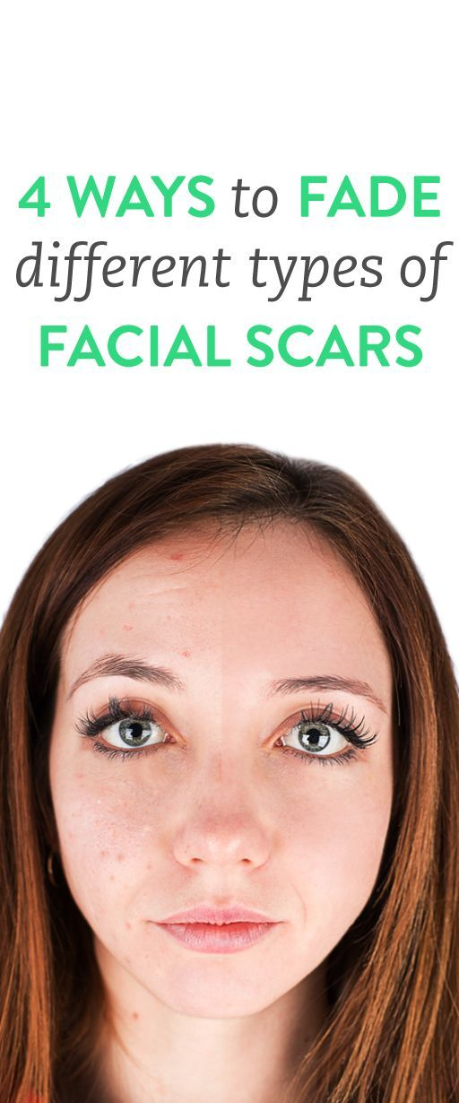 4 ways to fade scars on your face
