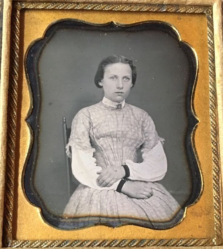 BEAUTIFUL YOUNG WOMAN LAZY EYE MEDICAL ODDITY 1/6 CASE DAGUERREOTYPE PHOTO D258