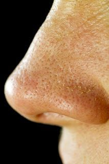How to remove blackheads from nose permanently   Online bee