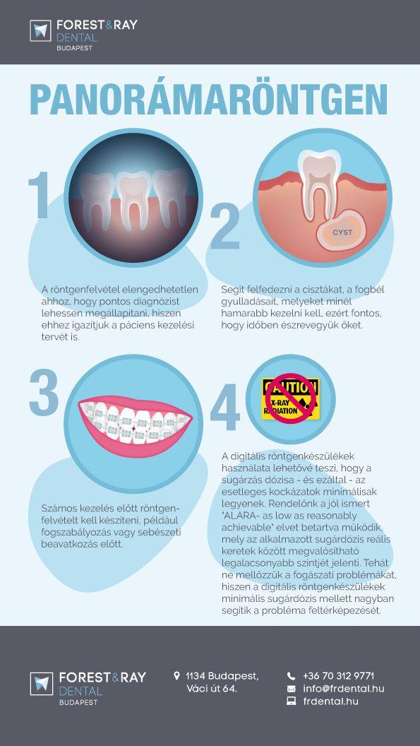 Infografikánkból megtudhatod, mikor van szükség panorámaröntgenre, illetve mely kezelések előfeltétele a röntgen, illetve hogyan készül el a röntgenfelvétel. #fogorvos #fogászat #xray