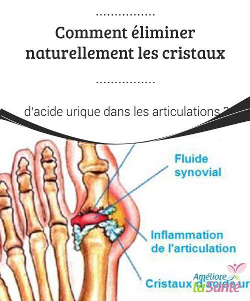Comment #éliminer naturellement les cristaux d'acide urique dans les articulations La #maladie connue sous le nom de #goutte est due à une production trop élevée #d'acide #urique dans le sang.