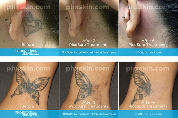 Cost Of Tattoo Removal