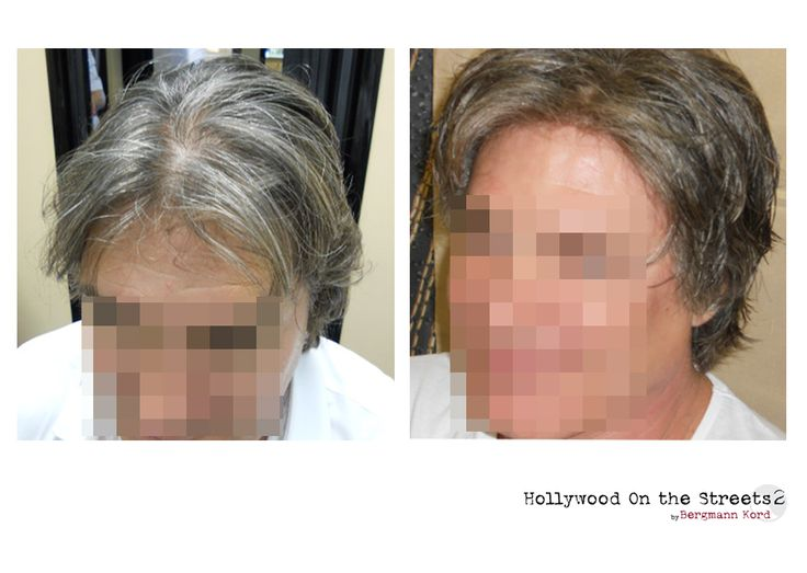 www.hos2.gr Αποκατάσταση μαλλιών με την τεχνική HOS-2. Φωτογραφίες πριν και μετά.