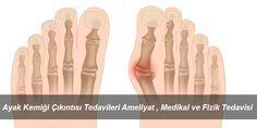 Ayak Kemiği Çıkıntısı Nasıl Tedavi Edilir? Ayak Kemiği Çıkıntısı Neden Olur? Ayak Kemiği Çıkıntısı Ameliyatı Nasıl Yapılır? Ayak Kemiği Çıkıntısı Medikal Tedavisi , Ayak Kemiği Çıkıntısı Evde Tedavisi Nasıl Yapılır? Ayak Kemiği Çıkıntısı Tüm Sorularınızın Cevabı Özel Haberimizde...
