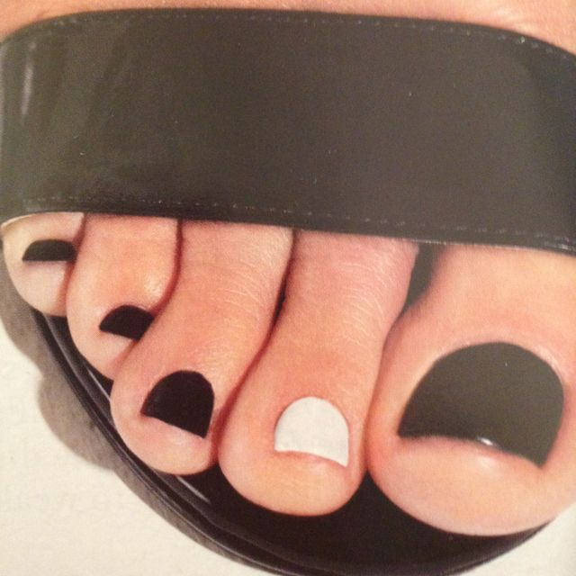 Black & White Toe Nail Polish!  If you have a toenail fungus problem, come to Beautiful Toenails in Southfield, MI!  Call (248) 945-1000 TODAY to set up an appointment with us or visit our website www.toenailfungu.pro to find out more information!