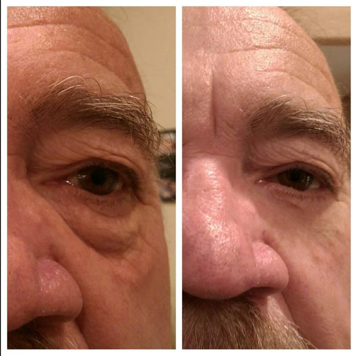 Instantly Ageless by Jeunesse Global To purchase go to http://beautyinskin.jeunesseglobal.com