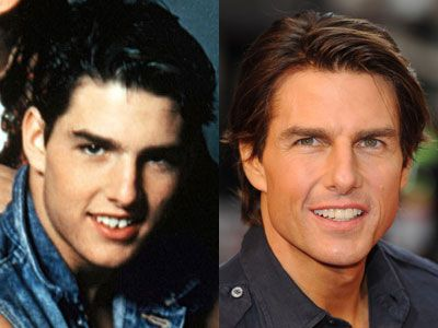 Celebrities Before And After Dental Work | KiwiReport
