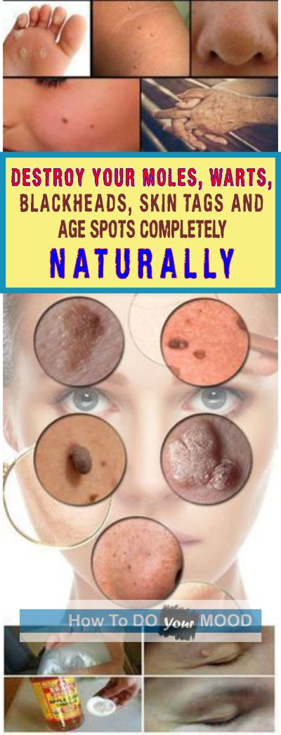 Destroy your Moles, Warts, Blackheads, Skin Tags and Age Spots Completely Naturally #moles #blackheads #skintags #naturally #agespots #homeremedy