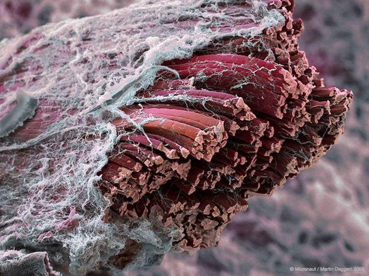 Electron micrograph of a cross-section of muscle tissue. It is surrounded by the extracellular tissue that acts as the connective tissue. Each muscle fiber is joined together by the connective tissue to make up the complete muscle.Image by Martin Oeggerli