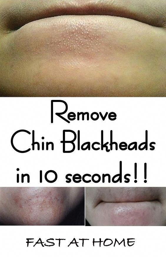 How To Get Rid Of Pimples In 10 Seconds