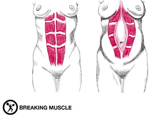 6 Exercises For Rebuilding Your Core After Pregnancy | Breaking Muscle