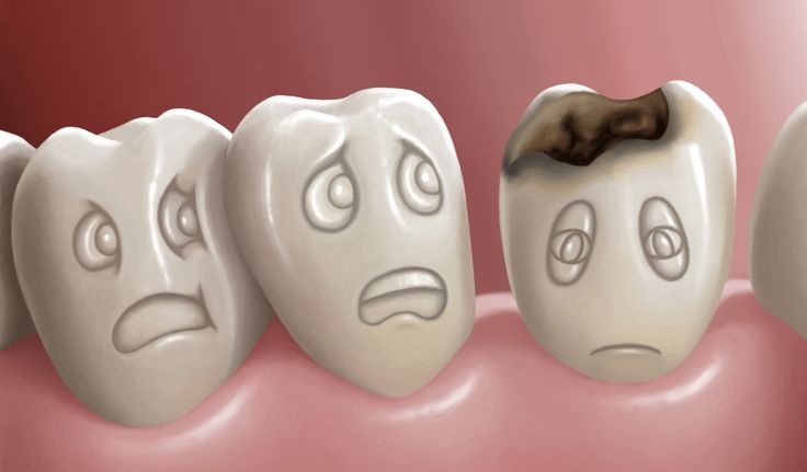 Did you know? Tooth decay is the second most common disease, second only to the common cold