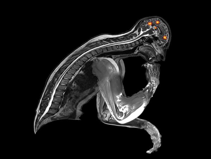 A functional MRI of the thinker. byrdnick.com