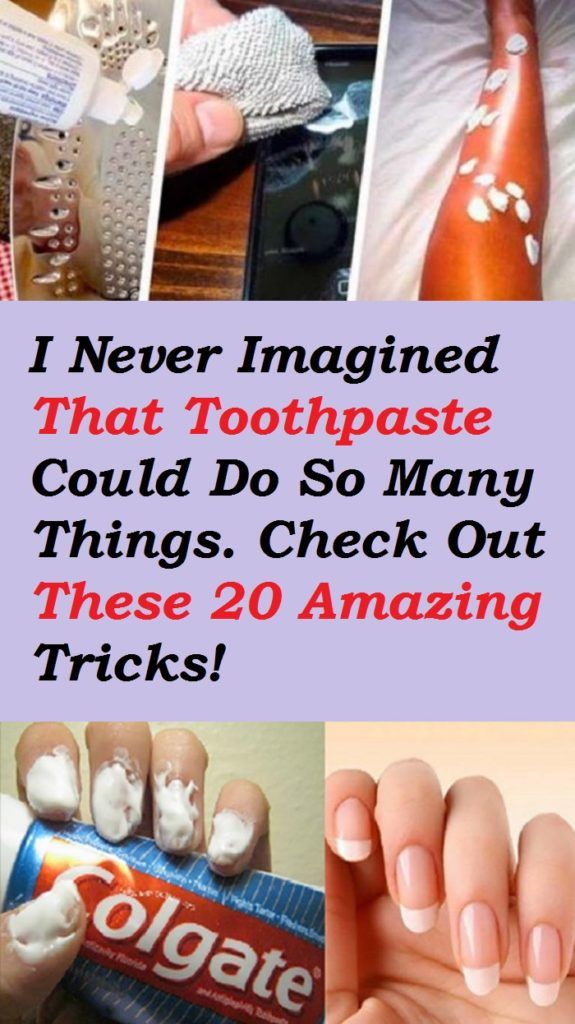 I Never Imagined That Toothpaste Could Do So Many Things. Check Out These 20 Amazing Tricks!