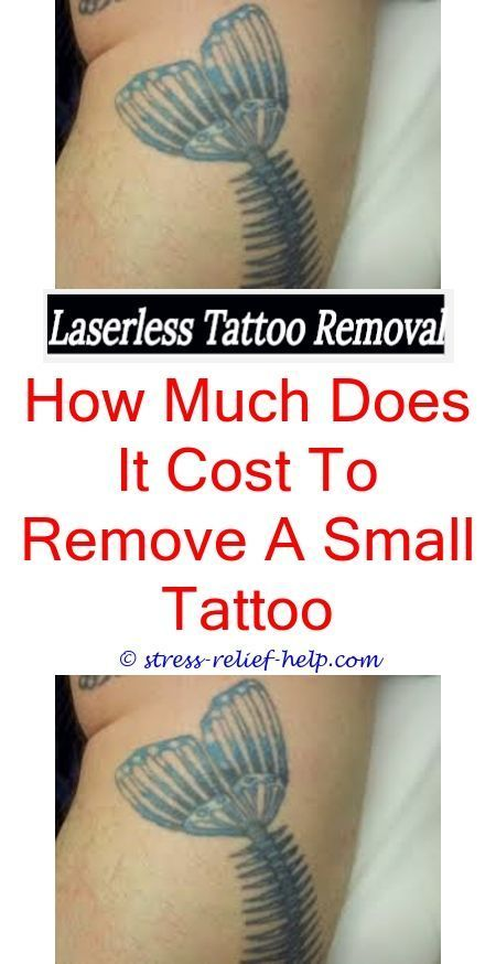 tattoo equipment why does skin itch after tattoo laser removal ...