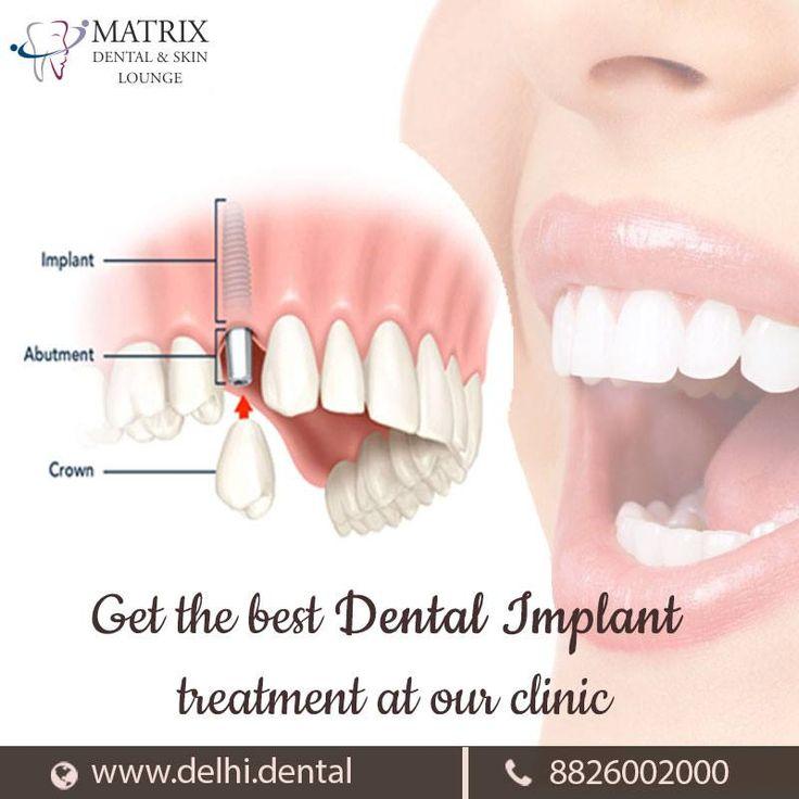 Best Implant Dentist Near Me: Pin By Matrix Dental On Dental Services